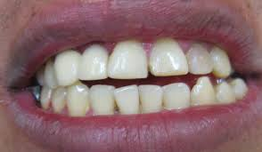 The Dangers of Cracked Teeth: Why You Should Have Them Looked at Right Away